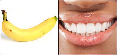 Banana: Smile