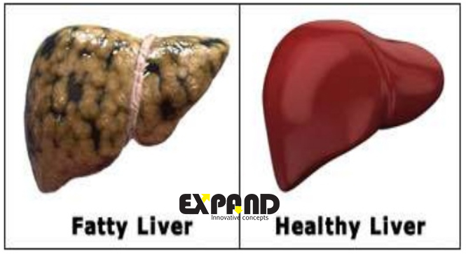 It can cause fatty liver