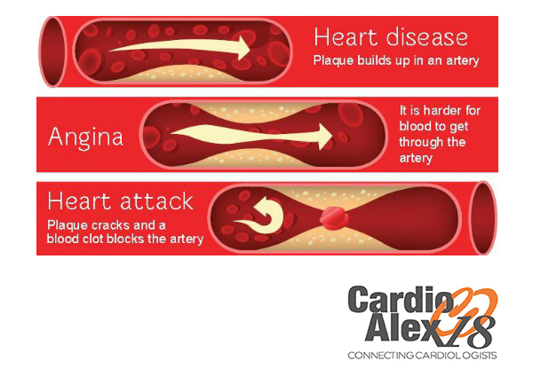 Difference between angina and heart attack